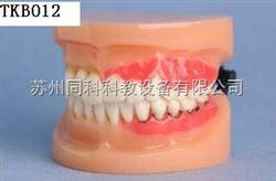 TKB012牙周病演示模型
