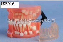 TKB016乳恒牙交替解剖模型