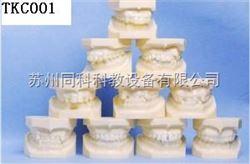 TKC001正畸模型
