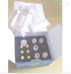 大鼠多巴胺转运蛋白(DAT)检测试剂盒