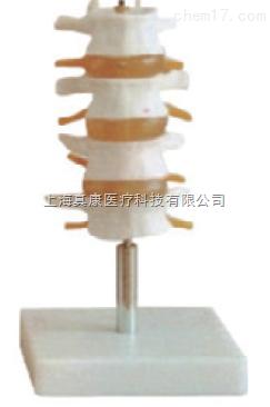 正常腰椎组合(人体骨骼模型)