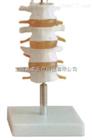 ZK-XC118/(四节)正常腰椎组合(人体骨骼模型)