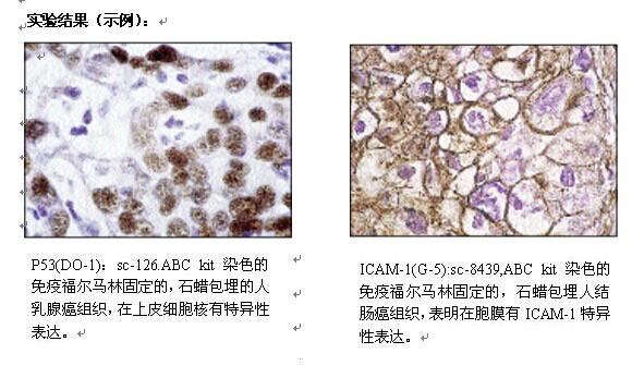 免疫组化切片染色abc