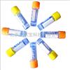 EK0801供应重组肠激酶,EK酶,solarbio